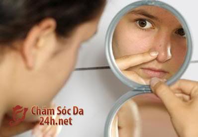 Nguyên nhân gây mụn cám và mặt nạ chữa trị