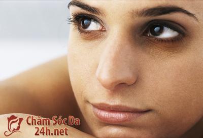 Cách trị thâm quầng mắt đơn giản mà hiệu quả