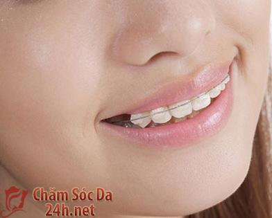 Chế độ chăm sóc hợp lý khi lắp niềng răng