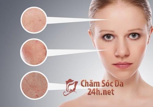 Mẹo trị da nhờn siêu đơn giản và hiệu quả