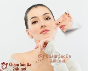 Cách trị sẹo lõm cực kỳ đơn giản mà hiệu quả