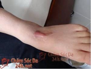 Các phương pháp trị sẹo lồi ở chân