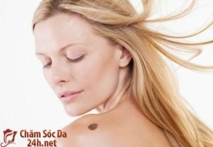 Phương pháp tự nhiên tẩy sạch vết bớt trên da